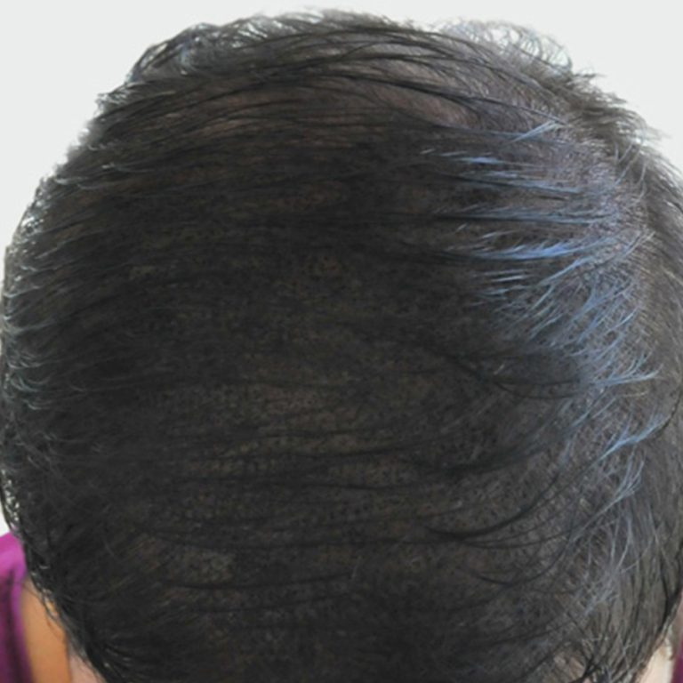 scalp micropigmentation done to hide hair loss
